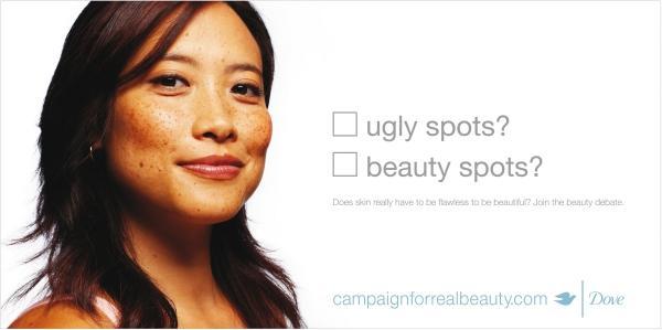 beauty-spots